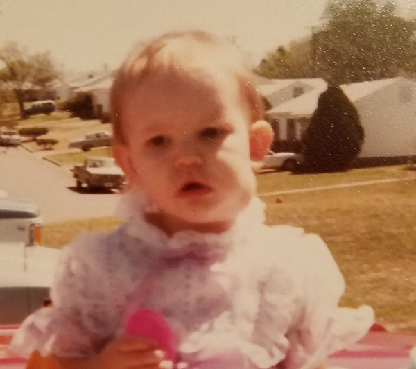 My baby pic with lump on neck